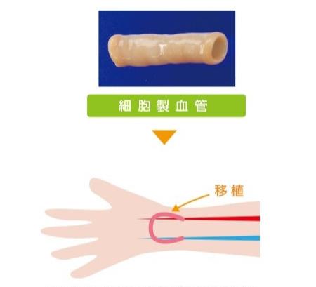 細胞製人工血管移植イメージ
